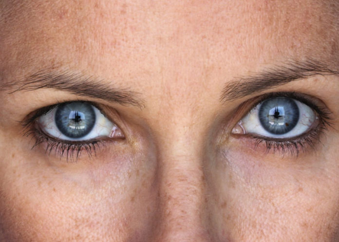 Rimedi naturali per eliminare le macchie solari dal viso