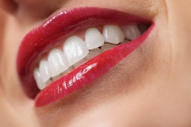 Un bel sorriso di una bocca curata