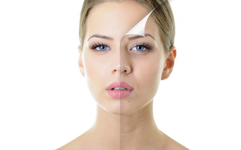 peeling del viso