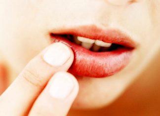 labbra morbide e idratate anche in estate