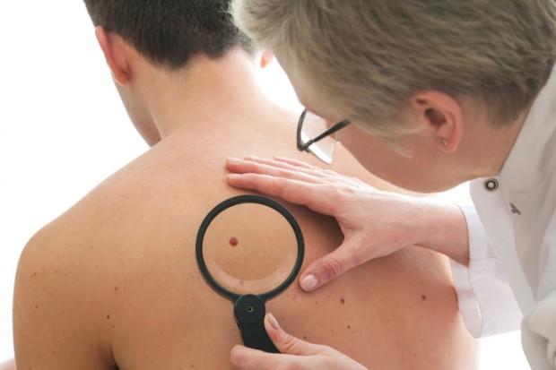 controllo nei prima di prendere il sole per evitare melanoma