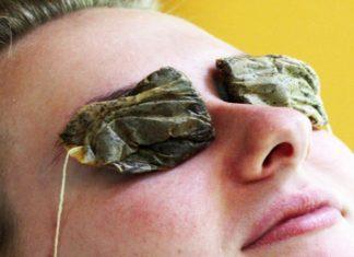 Rimedi naturali per la cura dell'orzaiolo