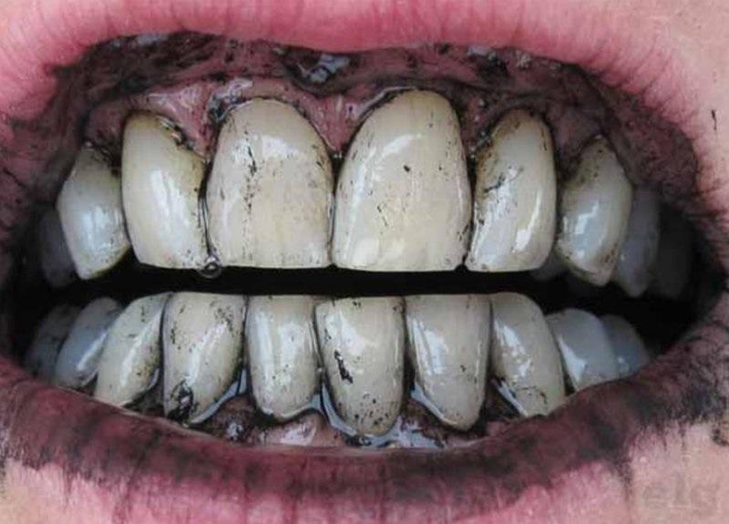 denti sbiancati con carbone vegetale