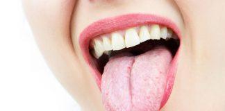 15 stati di alterazione della lingua (colore e forma) che è bene non sottovalutare