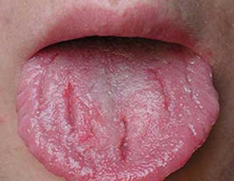 lingua che indica qualche disturbo in atto