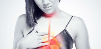 6 rimedi naturali (e 5 abitudini sane) per evitare i disturbi del reflusso