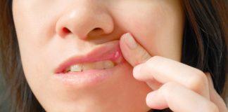 Mani-bocca-piedi, un virus che può colpire anche i genitori
