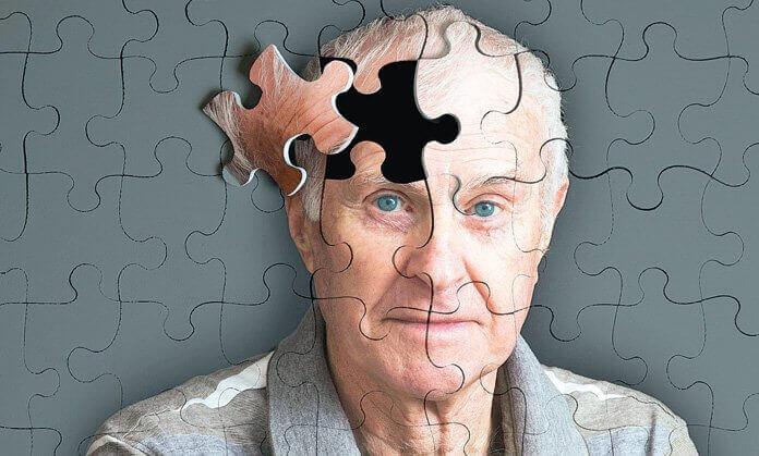 Alzheimer, come riconoscere i primi sintomi