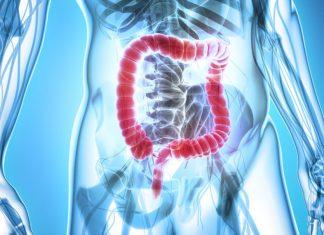 3 rimedi naturali efficaci per la pulizia del colon