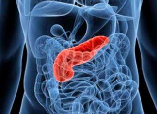 Un tumore in rapida crescita a causa di sigarette, obesità e cattiva alimentazione