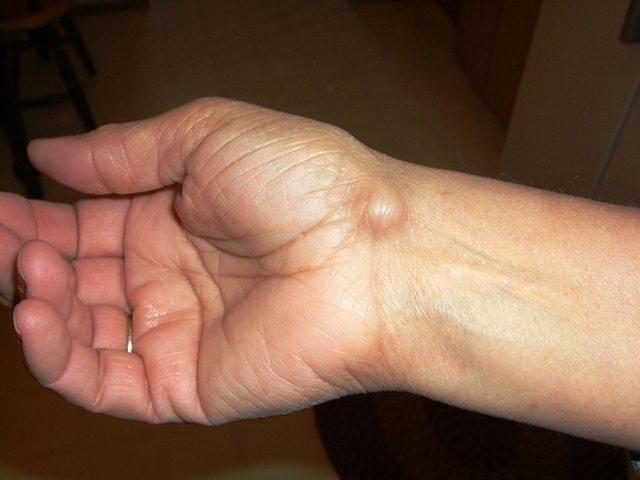 ciste sinoviale sotto al polso