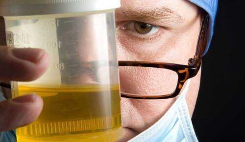 analisi delle urine in caso di cattivo odore