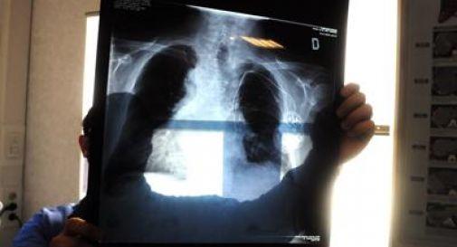 radiografia dei piedi
