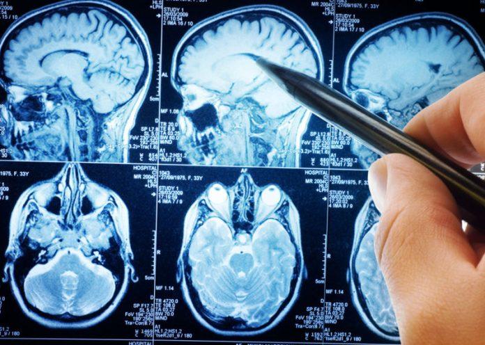 Tumore al cervello, ecco i sintomi (a volte banali) a cui fare attenzione