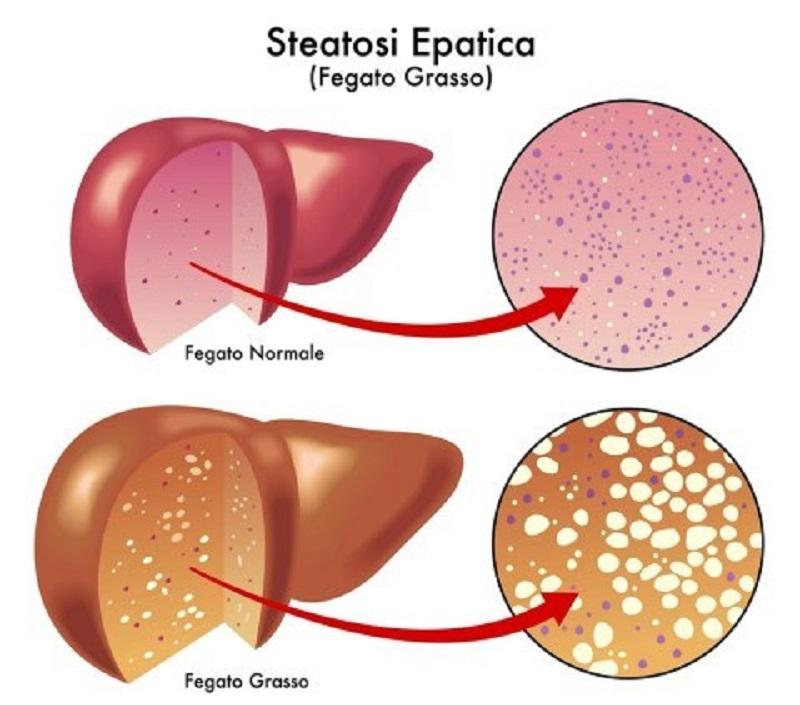 steatosi epatica, fegato grasso