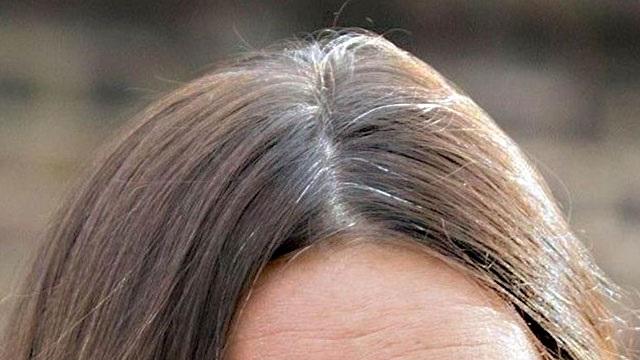 Comparsa dei capelli bianchi